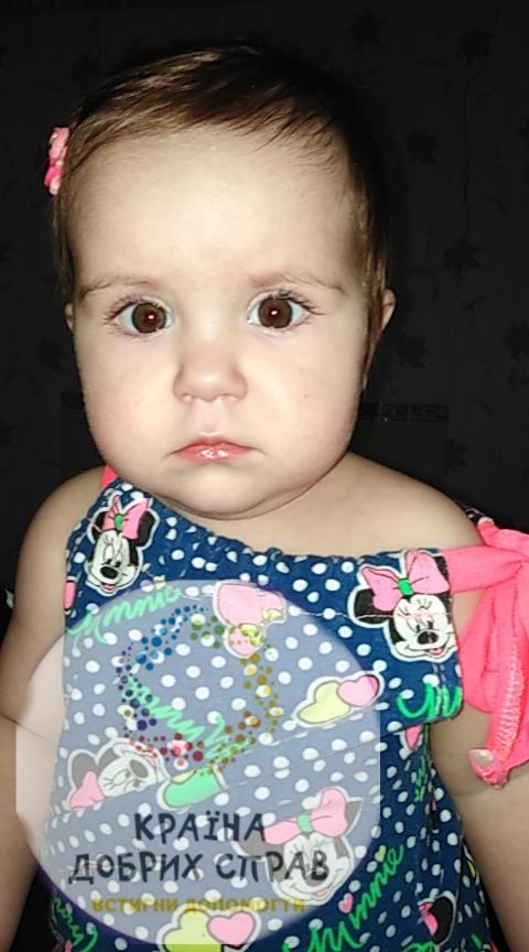 Вікторія Толмачова. Вроджена вада серця міжпередсердної перегородки з помірним стенозом легеневої артерії.