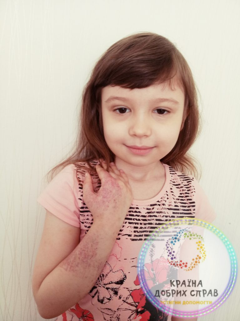 Алгаш Софія. Амегакаріоцитарна тромбоцитопенія