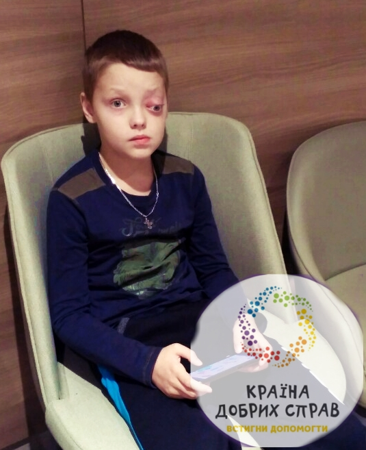 Григоров Олег. Рабдоміосаркома ембріонального типу орбіти ока